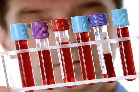 Кровь в медицинских пробирках