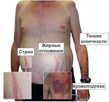 анализ крови если повышен холестерин
