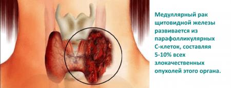 Высокий уровень гормона сигнализирует о наличии рака