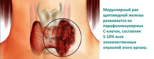 Как влияет на потенцию щитовидная железа