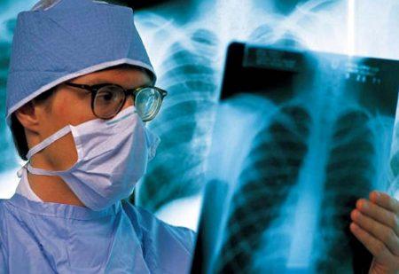 Повышенный показатель можно наблюдать при туберкулезе