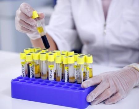 Исследование крови на гормоны при беременности
