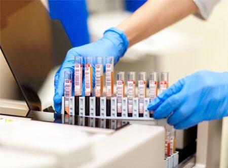 Для чего может понадобиться анализ крови на фосфолипиды