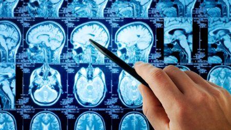 Анализ могут использовать для подтверждения наличия опухоли в организме