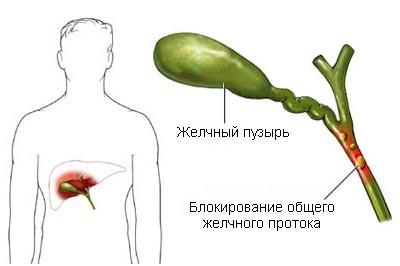 При холестазе показатель аполипопротеина группы А снижен