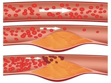 Повышенный гомоцистеин приводит к атеросклерозу