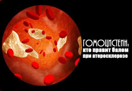 Роль гомоцистеина в организме