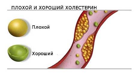 Холестерин продукты с большим содержание