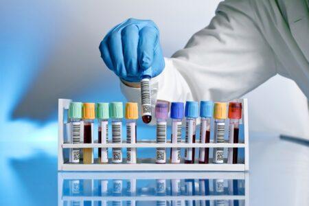 Анализ на кальций в крови