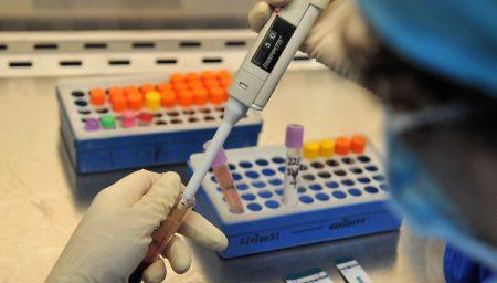 Строение лактатдегидрогеназы