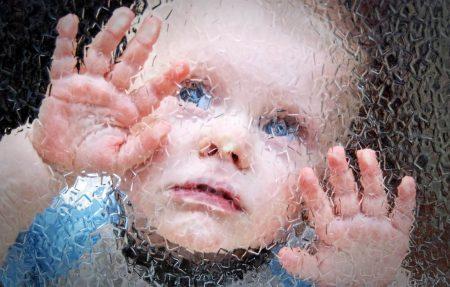 Ребенок, больной рахитом