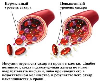 Расщепление глюкозы инсулином