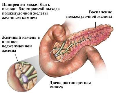 Панкреатит всегда сопровождается изменением уровня амилазы