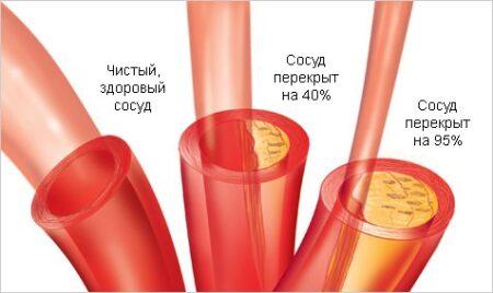 опасен высокий холестерин в крови