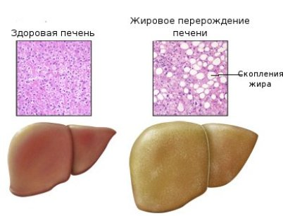 Анализ на триглицериды назначают при патологиях печени