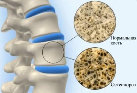 Остеопороз также определяется уровнем кальцитоцина