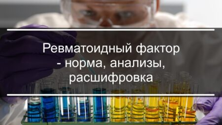 Что такое анализ на ревматоидный фактор