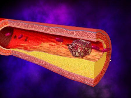 Повышение антител всегда предупреждает о возможном развитии тромбозов