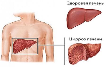 Повышенный уровень бета-глобулинов - признак болезней печени