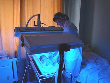 Фототерапия для снижения билирубина
