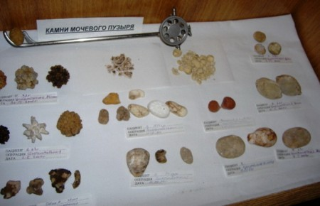При избытке мочевой кислоты образуются камни в мочевом пузыре