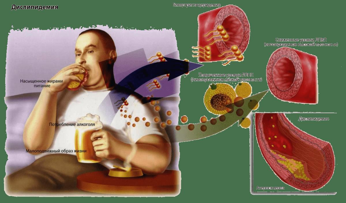 Повышенный уровень холестерина в крови: причины, симптомы, методы терапии