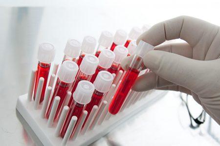 Уровень СРБ крови у женщин изменяются в течение всей жизни
