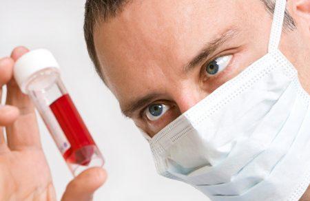 Норма С-реактивного белка для мужчин