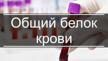 О чем расскажет анализ на общий белок крови