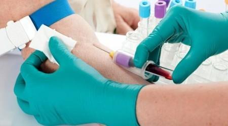 Биохомия крови берется из вены